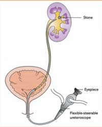 ureterolitotripsia-flexivel-okimoto-urologia