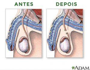 vasectomia-okimoto-urologia
